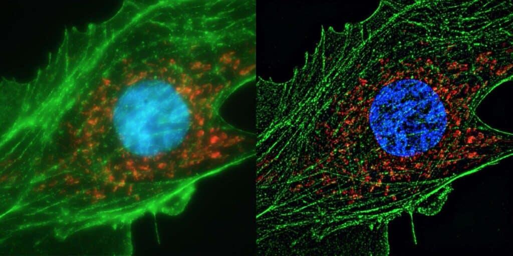 Komórka ludzkiego ciała pod mikroskopem, zabarwiona zielonym kontrastem